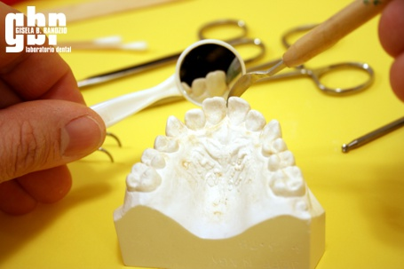 imagen-molde-protesis-dental