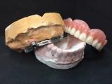 Prótesis implanto-mucosoportada con barra sobre 4 implantes