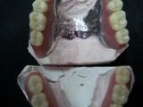 Prótesis fija combinada con attaches y esqueléticos