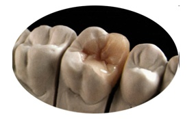 odontologia-estetica-img-pag5