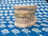 Dispositivo de avance mandíbular